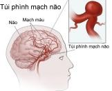 Phình mạch máu não – Cần tháo ngòi trước khi bom nổ !